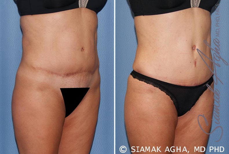 Orange County Newport Beach Tummy Tuck Revision 7 Front Right View