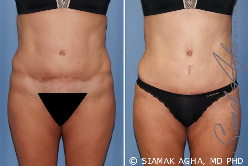 Orange County Newport Beach Tummy Tuck Revision Patient 7