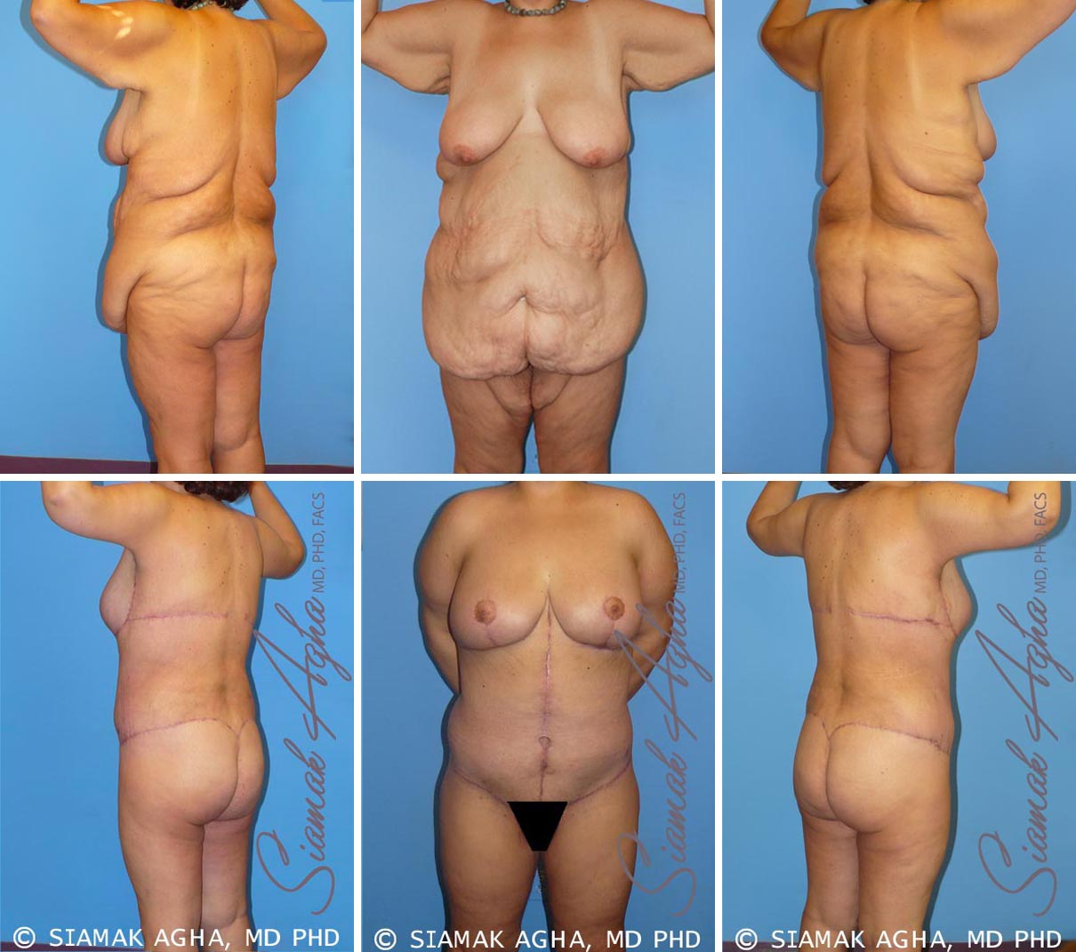 Total Body Lift Before and After Set 3