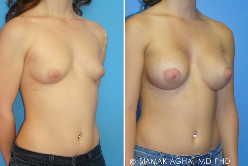 Tuberous breasts develop during the growth phase of the individual when the breasts fail to grow proportionally due to lack of lower pole skin and a high inframammary fold.