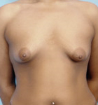 Typical Tubular Breast Patients - Image 1