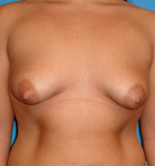 Typical Tubular Breast Patients - Image 2