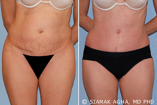 Orange County Tummy Tuck Newport Beach Patient 16