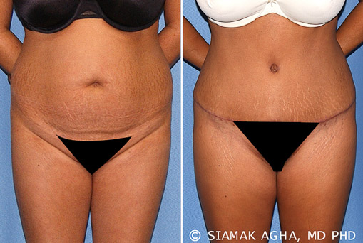 Orange County Tummy Tuck Newport Beach Patient 17
