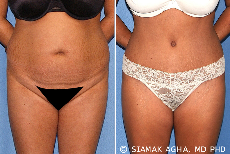 Tummy Tuck in Newport Beach CA, when you desire a flat and well toned abdomen.