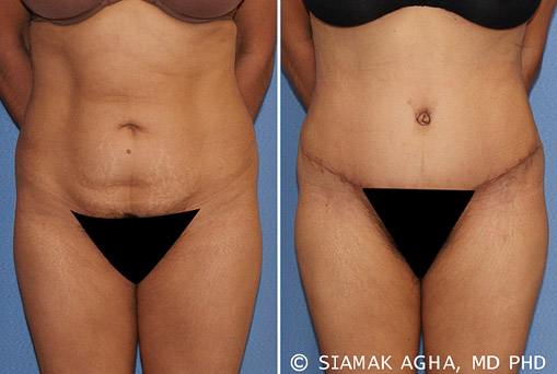 Orange County Tummy Tuck Newport Beach Patient 21