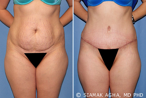 Orange County Tummy Tuck Newport Beach Patient 23