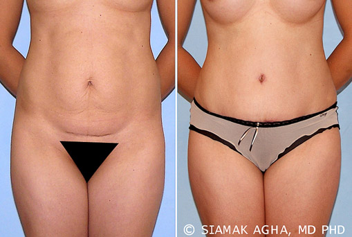 Orange County Tummy Tuck Newport Beach Patient 26