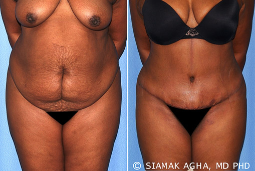 Orange County Tummy Tuck Newport Beach Patient 29