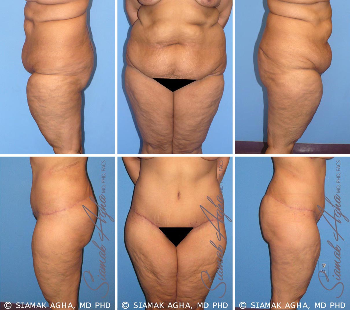 Tummy Tuck Before and After Set 2
