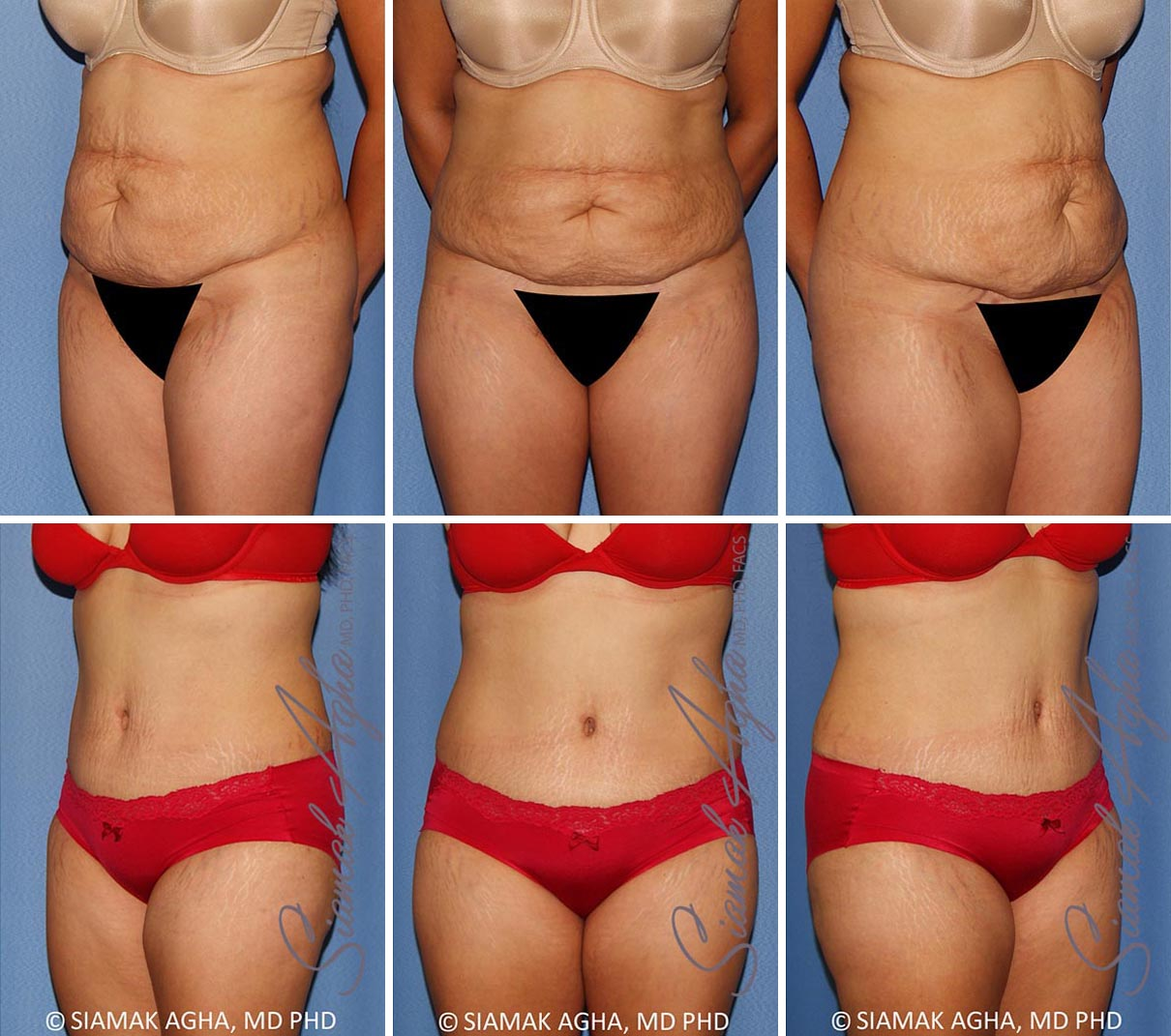 Tummy Tuck Before and After Set 3