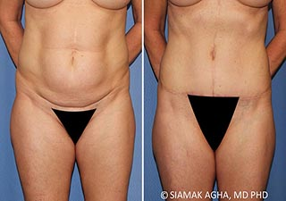 Orange County Tummy Tuck Newport Beach Patient 35