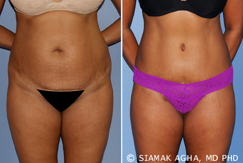 Tummy Tuck Risks & Complications - Scarring, Bleeding, Long Term