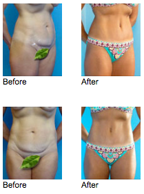Tummy Tuck Newport Beach Before and After