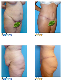 Tummy Tuck Newport Beach - Extended Abdominoplasty Before and After