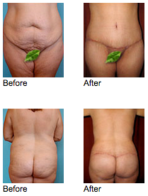 Tummy Tuck Newport Beach - Circumferential Abdominoplasty Before and After