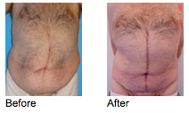 Tummy Tuck Newport Beach - Inverted-T or Fleur-de-Lis Abdominoplasty Before and After