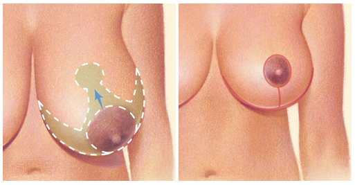 Breast Reduction Surgical Incisions Newport Beach - Image 2