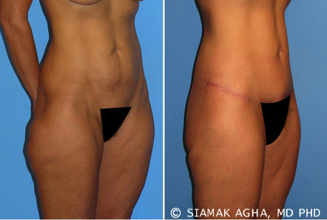 Incisions And Scars After Plastic Surgery - Image 1