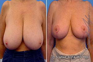 Orange County Newport Beach Breast Reduction Patients