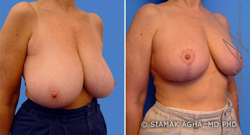 Orange County Newport Beach Breast Reduction 1 Front View
