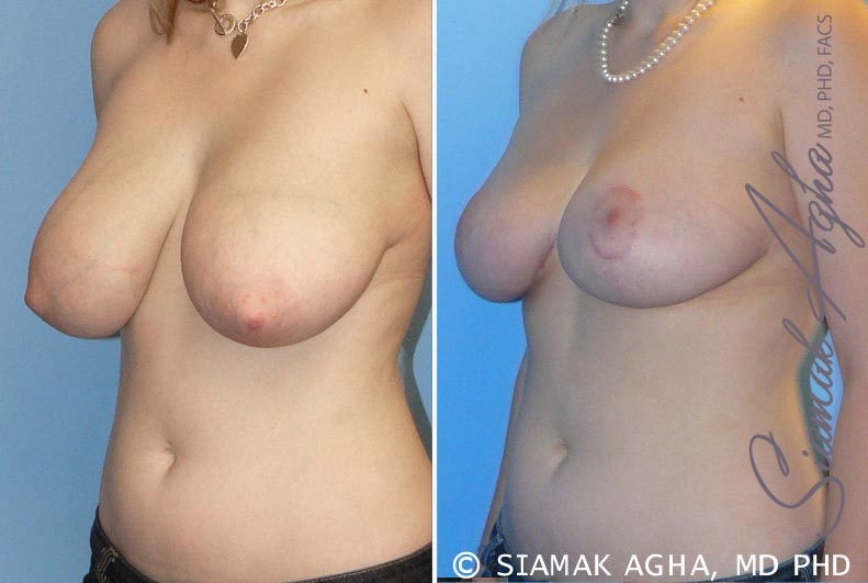 Orange County Newport Beach Breast Reduction 2 Front View