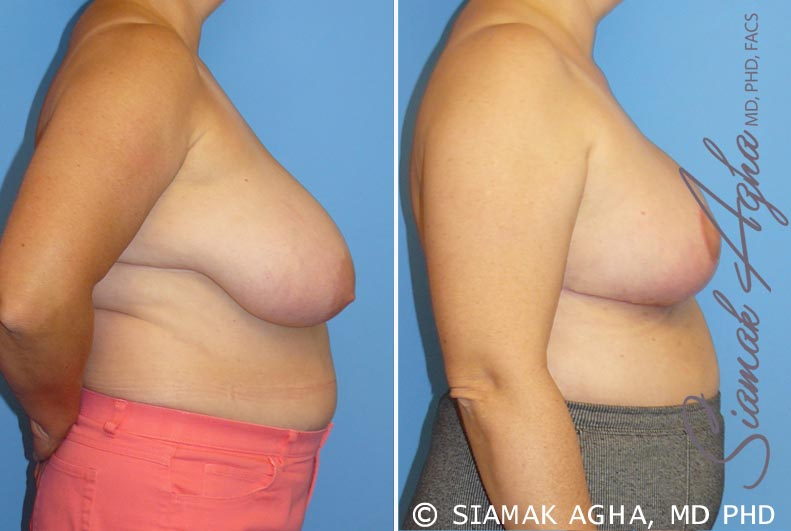 Orange County Newport Beach Breast Reduction 3 Front View