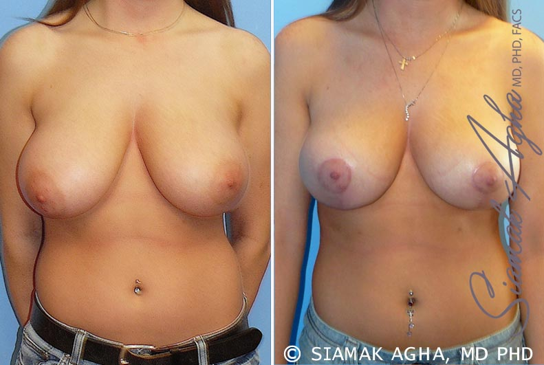 Orange County Newport Beach Breast Reduction Patient 6