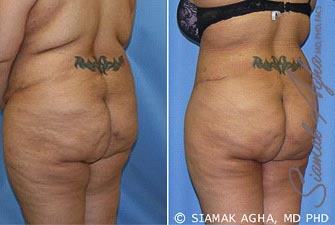 Orange County Newport Beach Tummy Tuck Revision 5 Back Left View