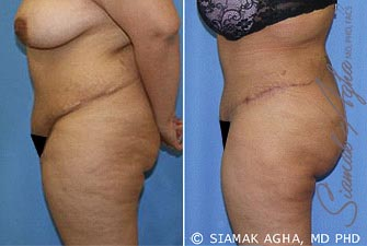 Orange County Newport Beach Tummy Tuck Revision 5 Left View