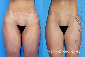 Orange County Newport Beach Vertical Thigh Lift Patient 1