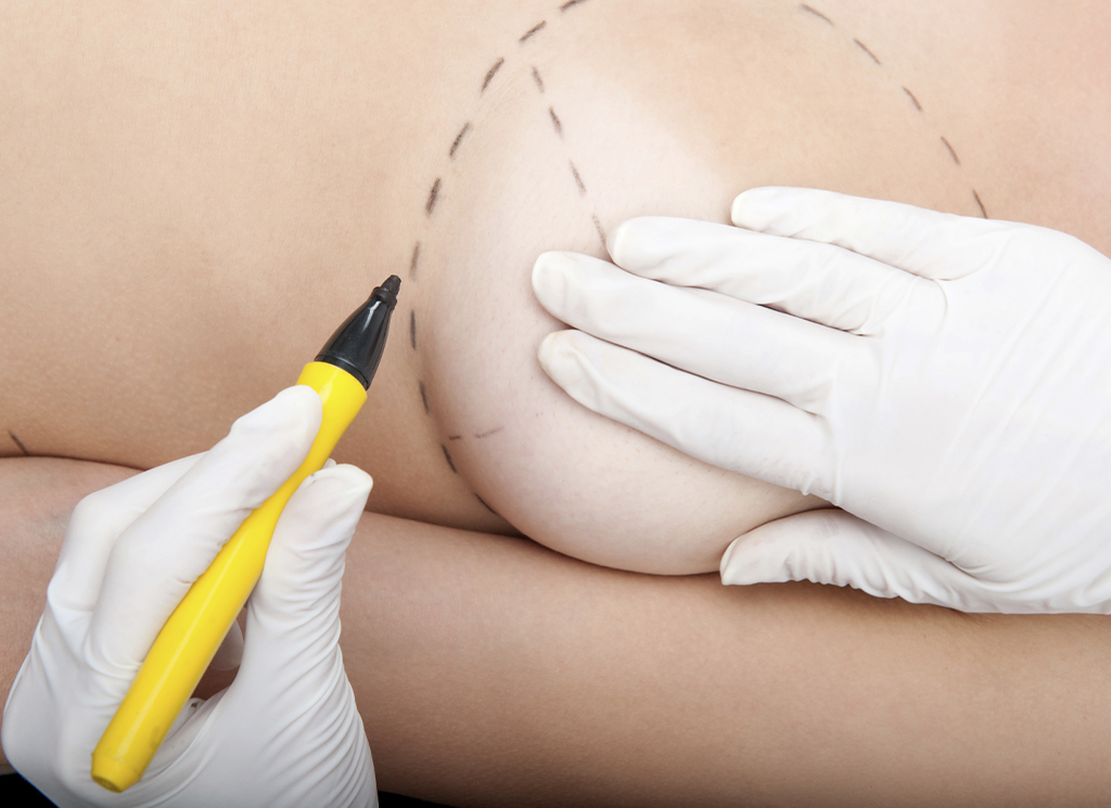 What Are The Safest Plastic Surgery Options?