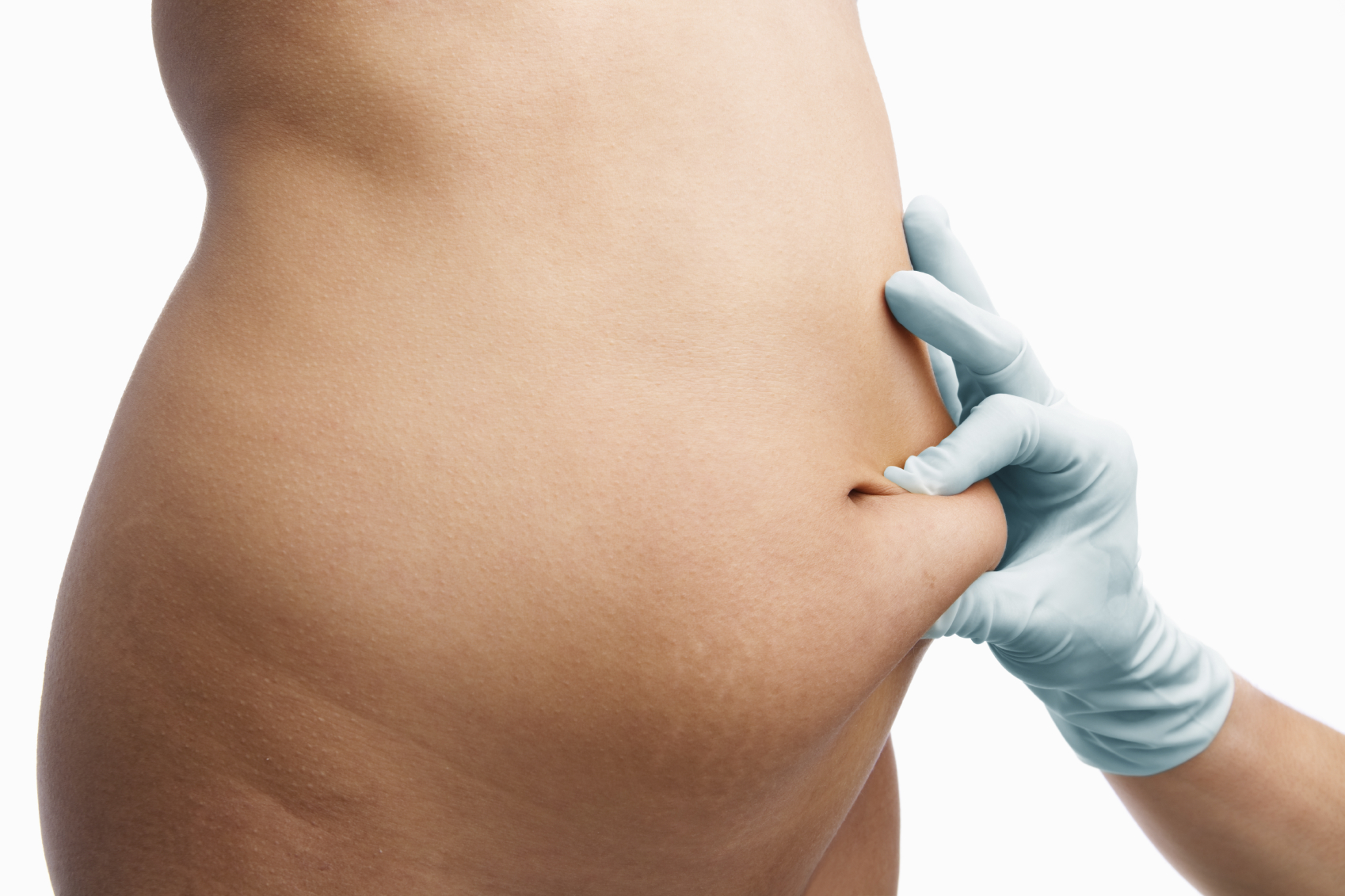 "Studies Attempt To Find ""Maximum Liposuction Amount"" For Body Contouring Patients"