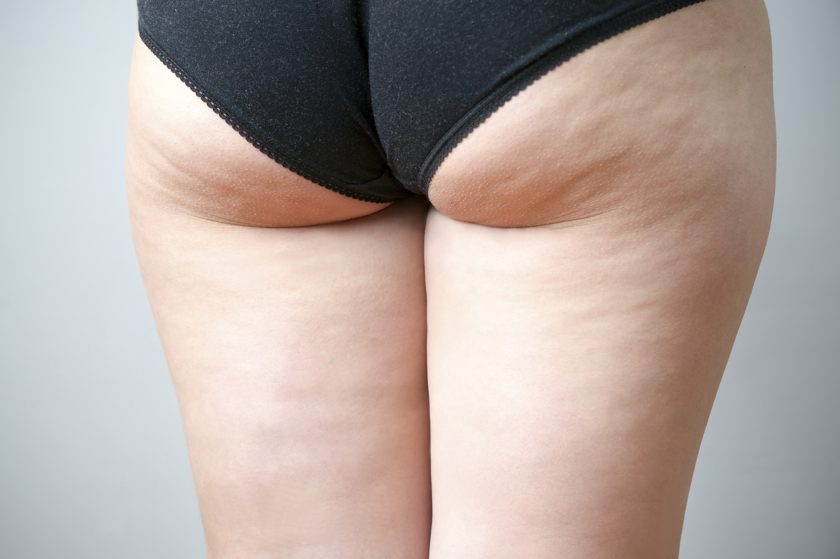 3 Types Of Buttock Enhancements And Contouring Surgeries
