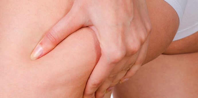 New Injectable Cellulite Treatment