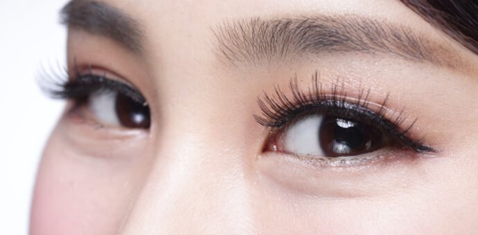 Botox Improves Crows-Feet Lines