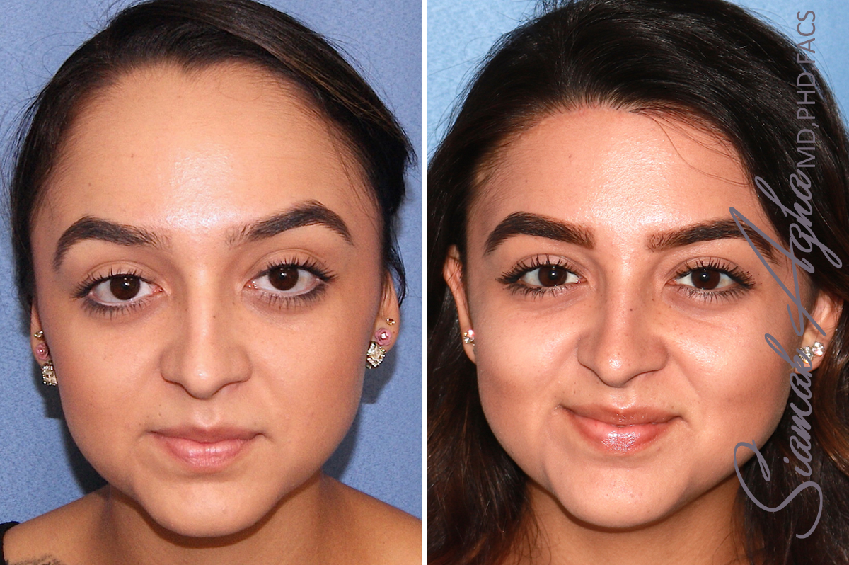 Orange County Newport Beach Forehead Reduction 3 Front View