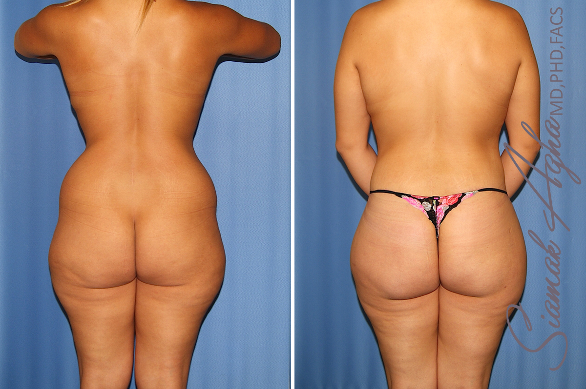 Orange County Newport Beach Total Body Lift 36 Back View