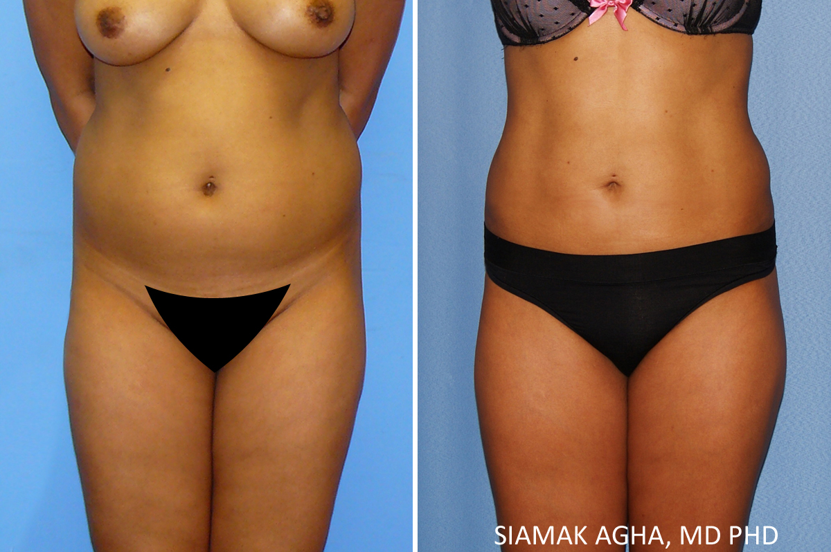 Orange County Newport Beach Liposuction Patient 22