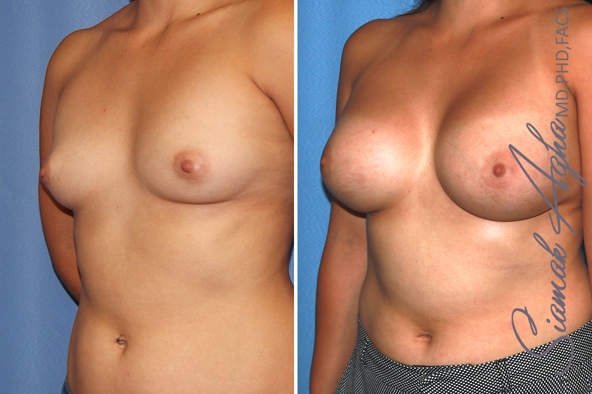 Orange County Newport Beach breast augmentation 39 Front Left View