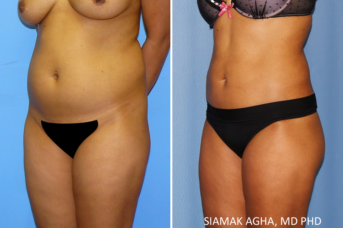 Orange County Newport Beach Female Liposuction 22 Front Left View