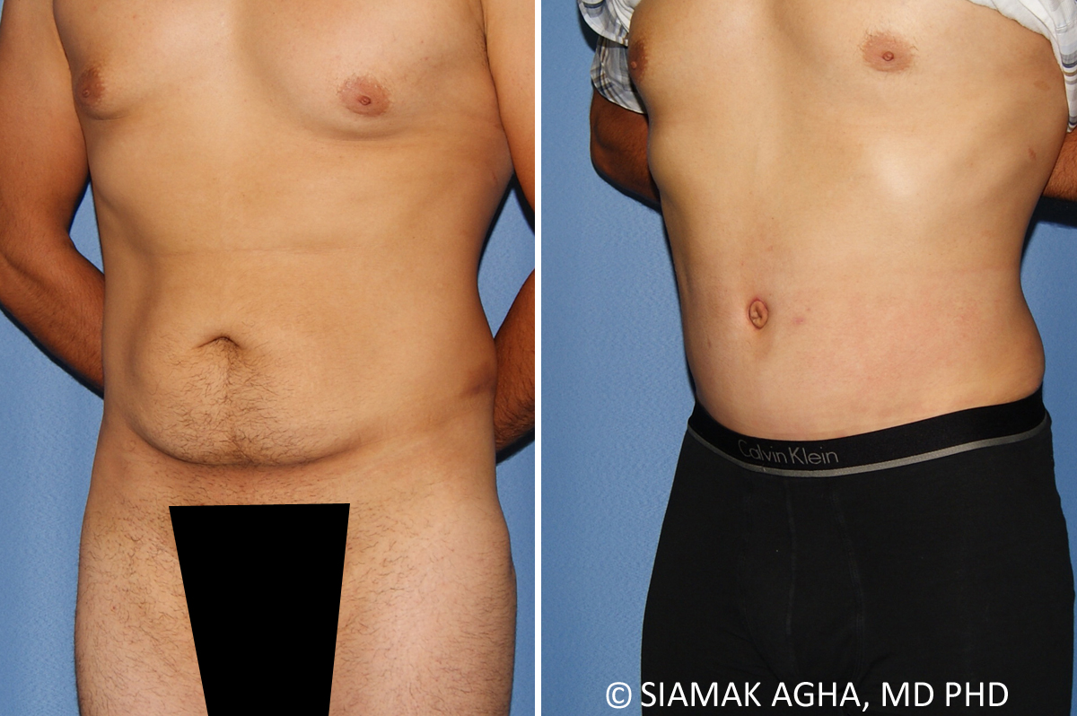 Orange County Newport Beach Male Breast Reduction 12 Front Left View
