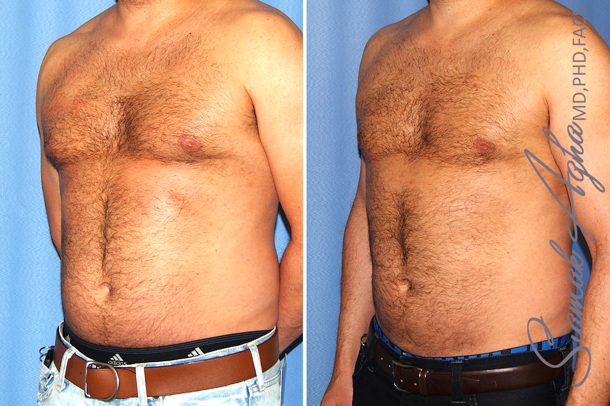 Orange County Newport Beach Male Liposuction 21 Front Left View