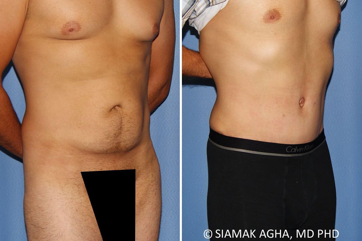 Orange County Newport Beach Male Breast Reduction 12 Left View