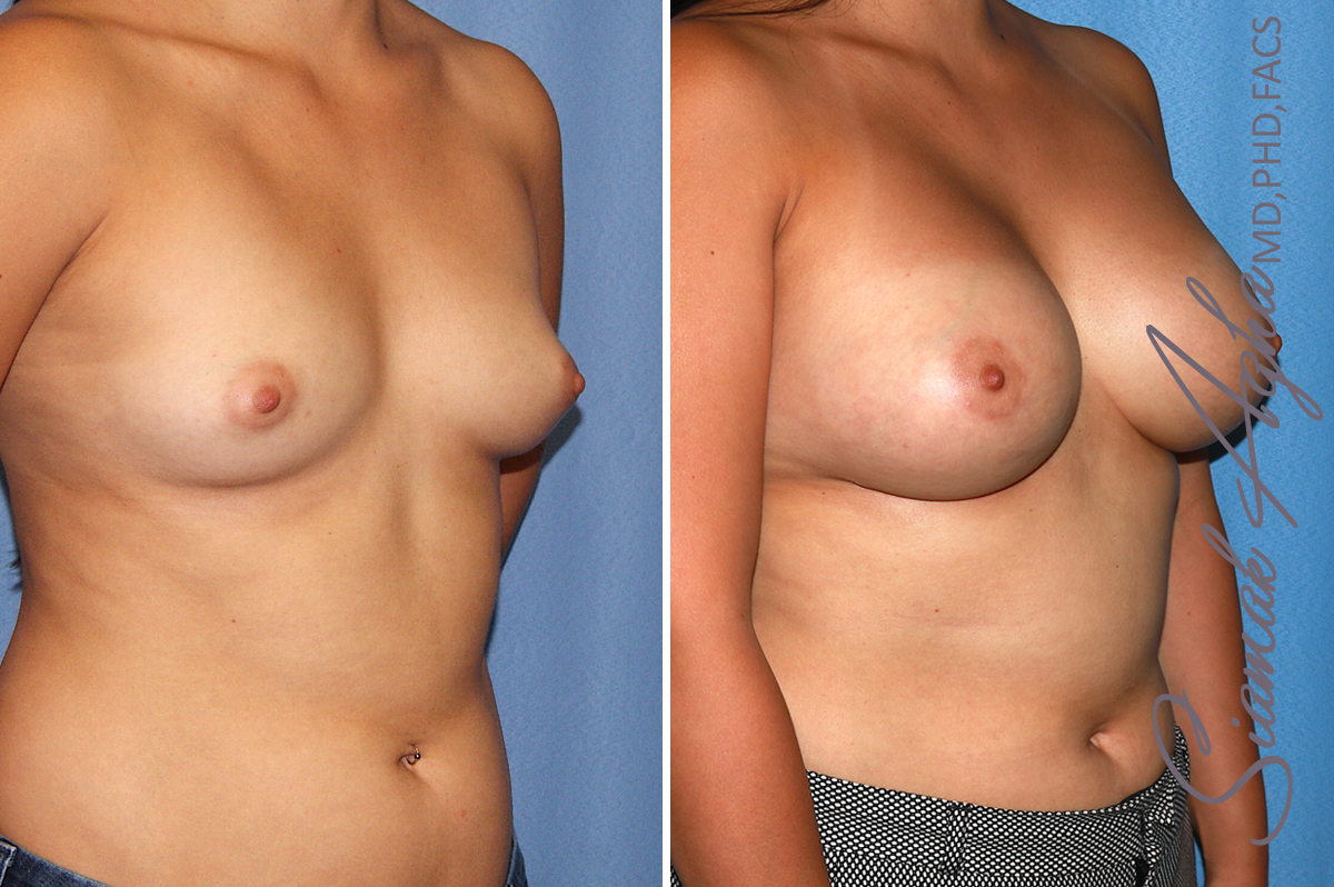 Orange County Newport Beach breast augmentation 39 Front Right View