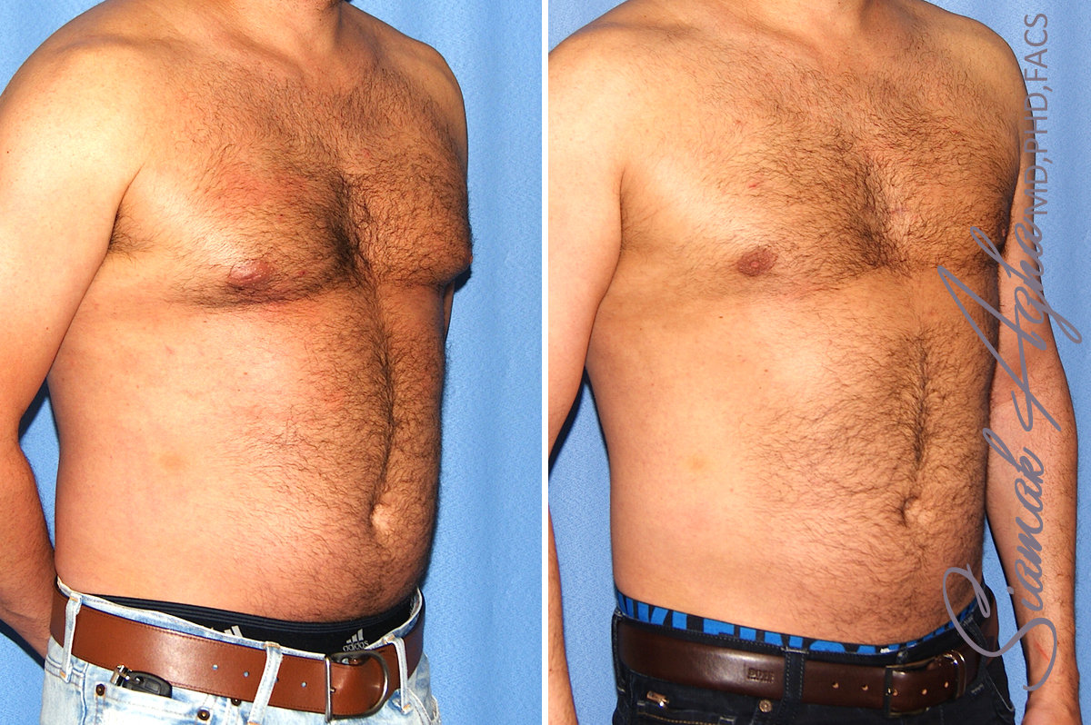 Orange County Newport Beach Male Liposuction 21 Left View