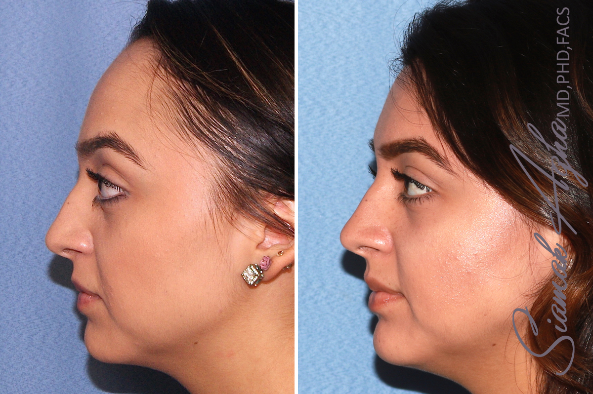 Orange County Newport Beach Forehead Reduction 3 Left View