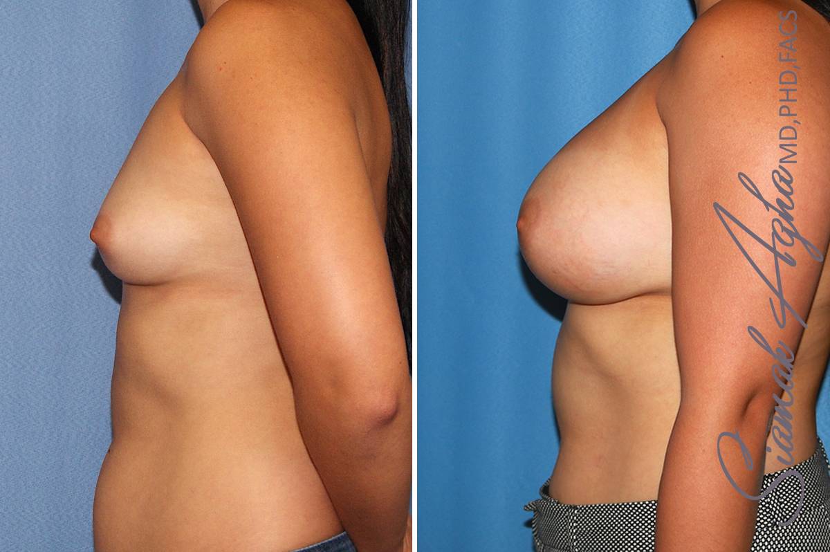 Orange County Newport Beach breast augmentation 39 Left View
