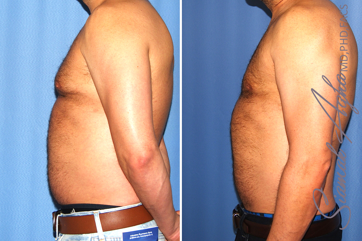 Orange County Newport Beach Male Liposuction 11 Left View