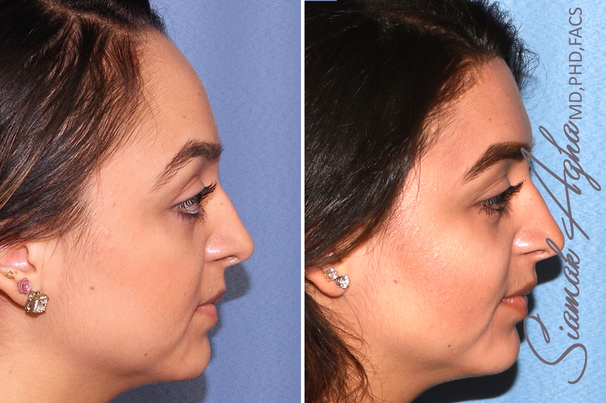 Orange County Newport Beach Forehead Reduction 3  Right View